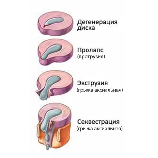 Дегенерация диска пролапс протрузия экструзия грыжа аксиальная секвестрация стадии развития грыжи диска