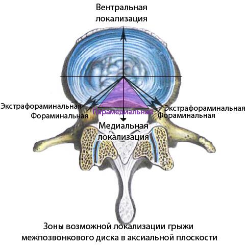 Разновидности грыж межпозвонковых дисков в аксиальной плоскости