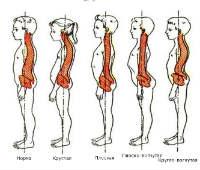 Нарушения осанки: плоская, круглая, плоско-вогнутая, кругловогнутая спина
