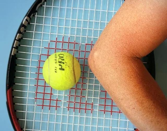 Локоть в большом теннисе