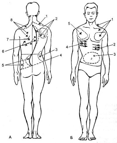 Схема клинического дифференцированного массаж при сколиозе II—III степени